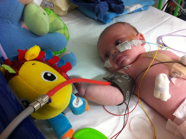 Baby Thomas Passant in Birmingham Childrens Hospital